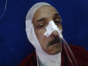 فريق طبي بمستشفى مصطفى باشا يرفع التحدي باستئصال ورم خبيث أنثوي