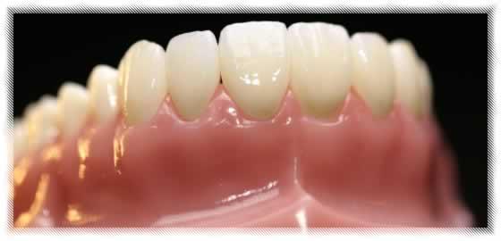 cap prothesiste dentaire reunion Le salaire moyen d'un prothésiste dentaire (artisans et commerçants) en france  est compris entre 3 537 € nets par mois et.