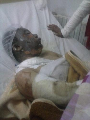 عقب وفاة الضحية الثانية في حريق حي مولاي مصطفى بعين تموشنت