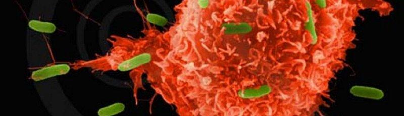Skikda - Divers Cancers