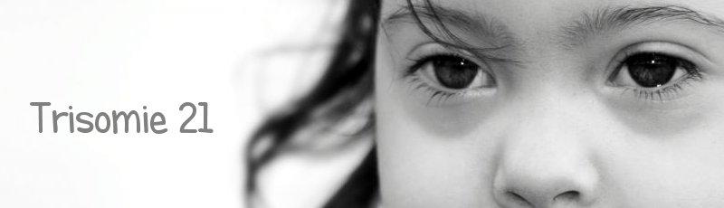 Tipaza - Trisomie 21 ou syndrome de Down ou Mongolisme