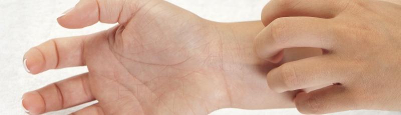 Tipaza - Eczemas