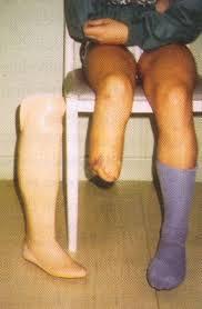Oran - Près de 1.500 amputations de pieds de diabétiques en 2013: La prise en charge d'un seul malade coûte 3.000 euros au CHUO