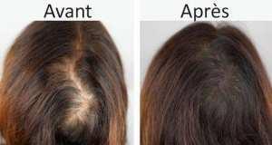 Traitement Des Pertes De Cheveux en Turquie