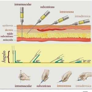 Les angles d'injection pour chaque type ; Sous-cutané, intradermique, intramusculaire et intraveineuse